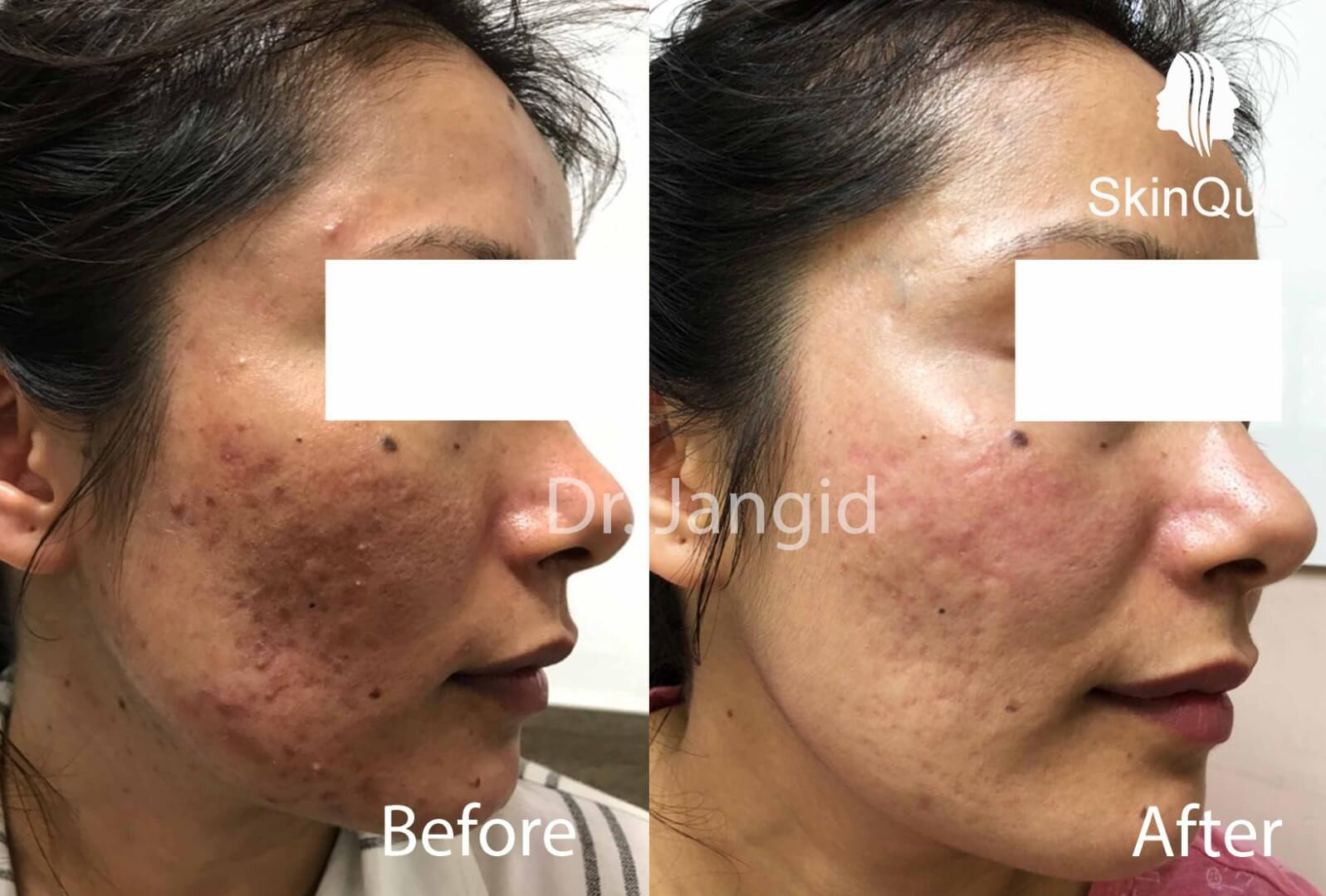 11 Pooja Brijwal in acne scar treatment