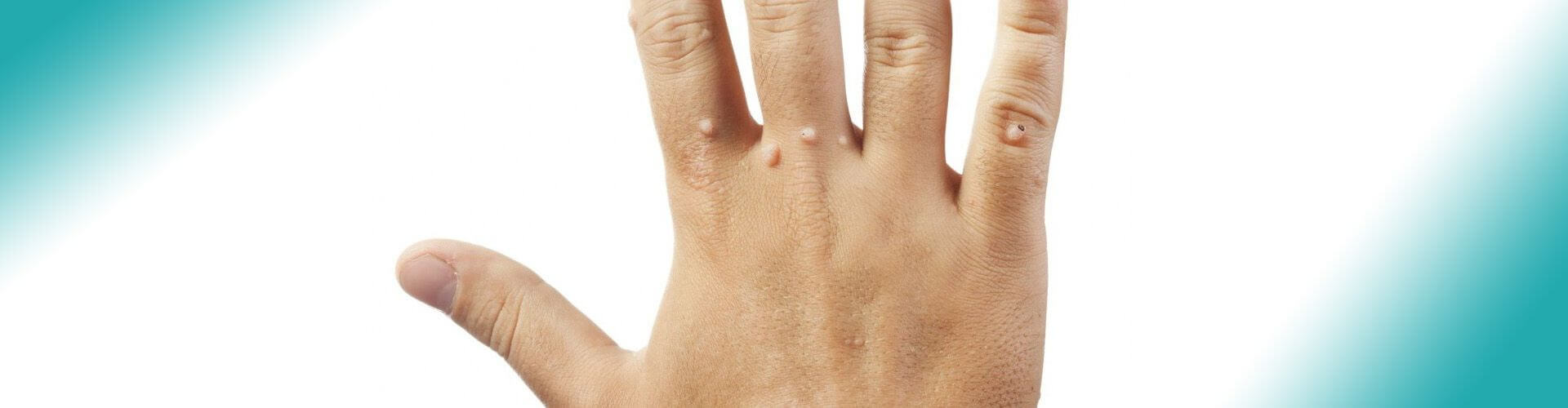 wart removal banner