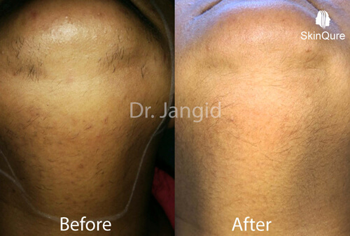 Laser hair removal after 4 sessions