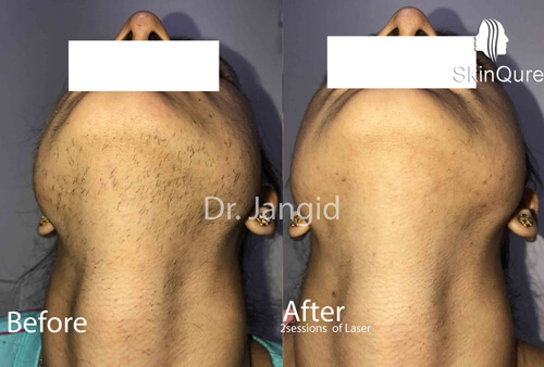 Laser hair removal -thick hair respond well