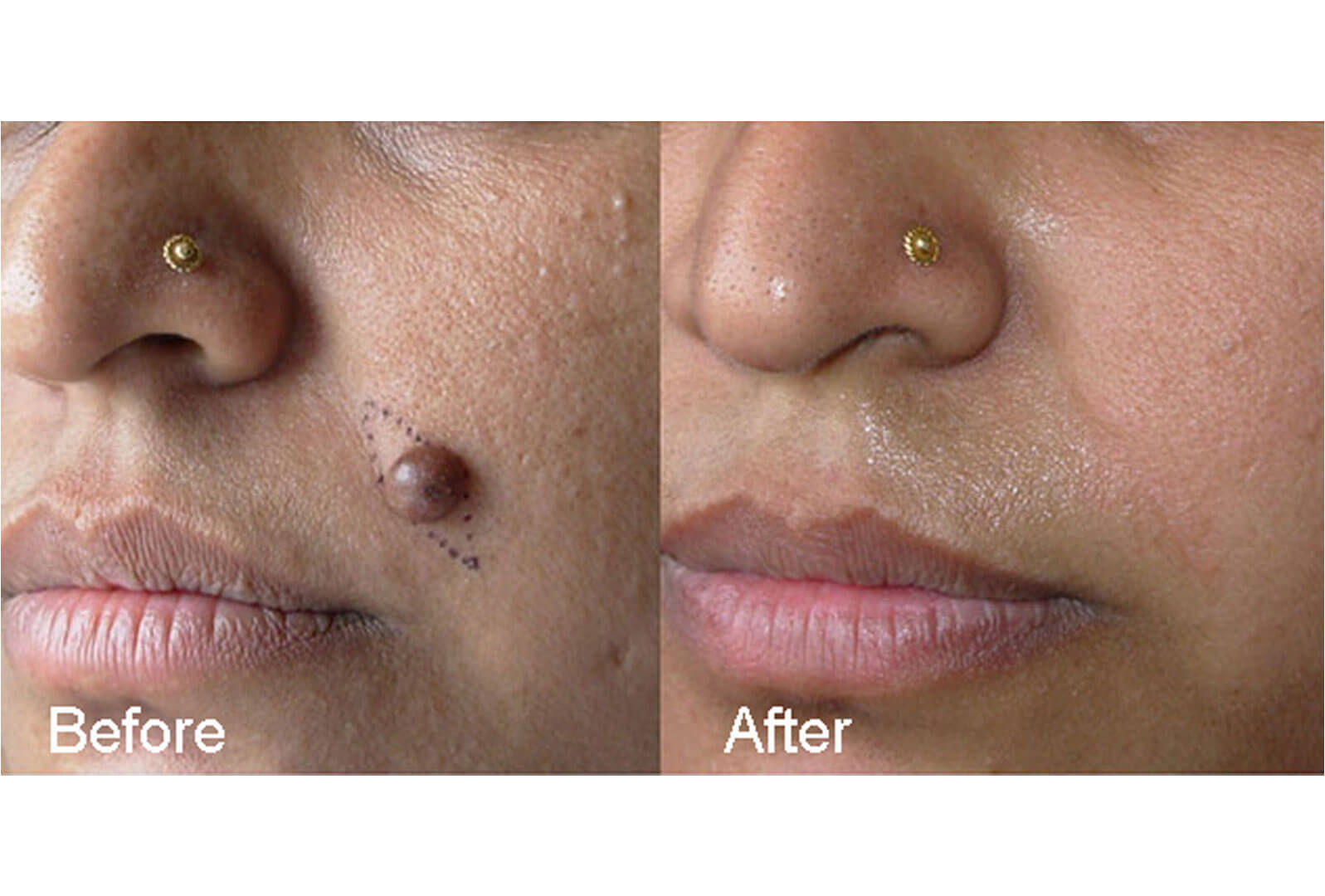 Surgical-Treatment-for-Permanent-Mole-Removal