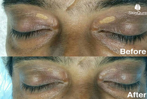 xanthelasma treatment after 2 months
