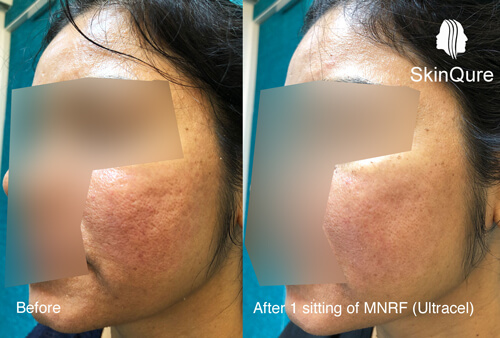 Open pore treatment by laser