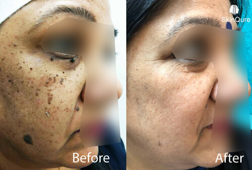 Skin Tags surgery Dramatic change in face