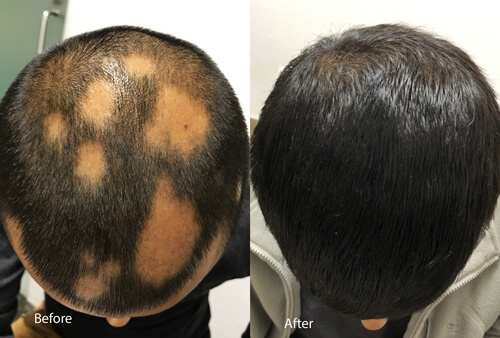 Alopecia areata after 4 months