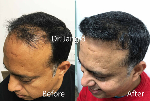 Hair Transplant frontal part