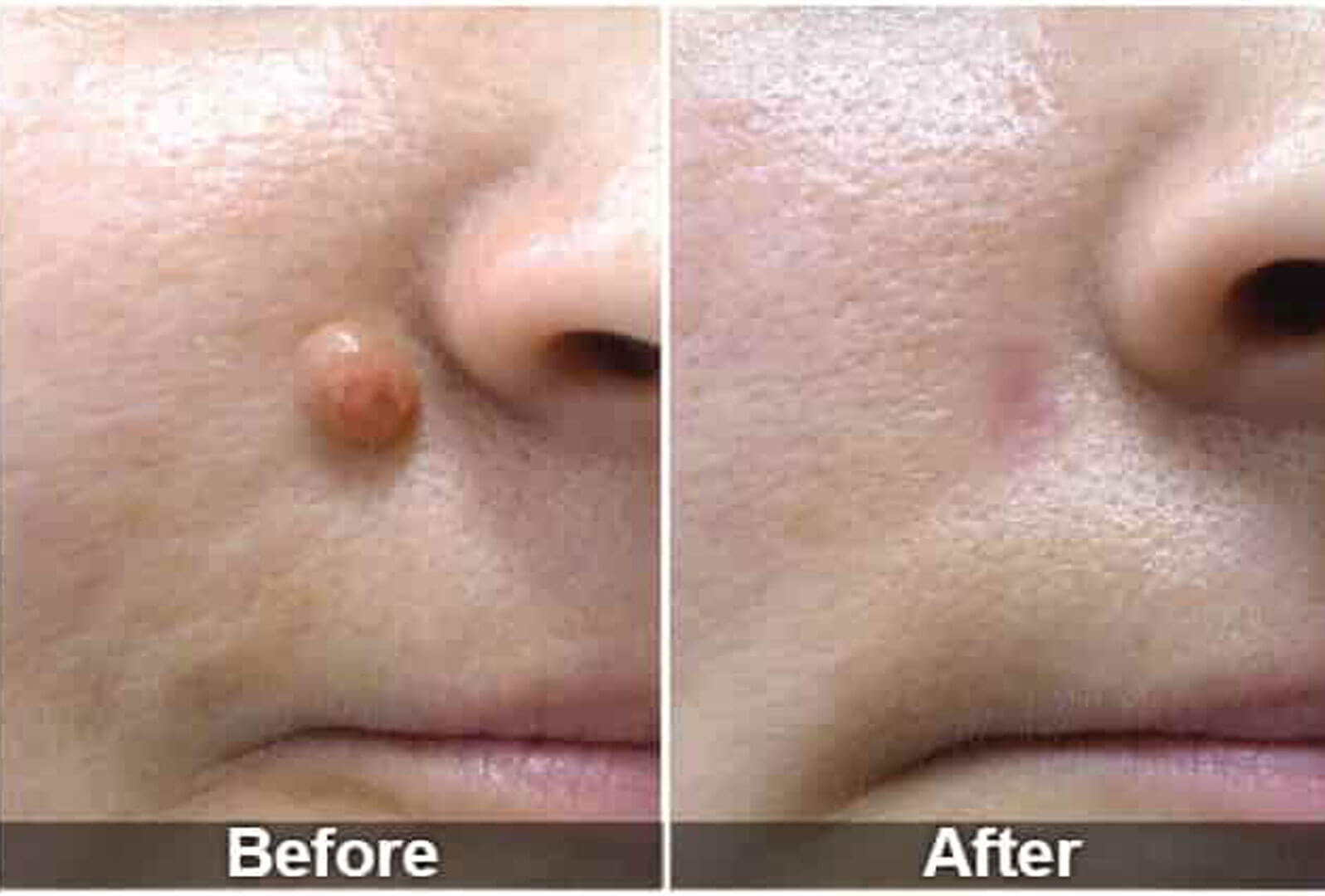Laser Mole Removal before After