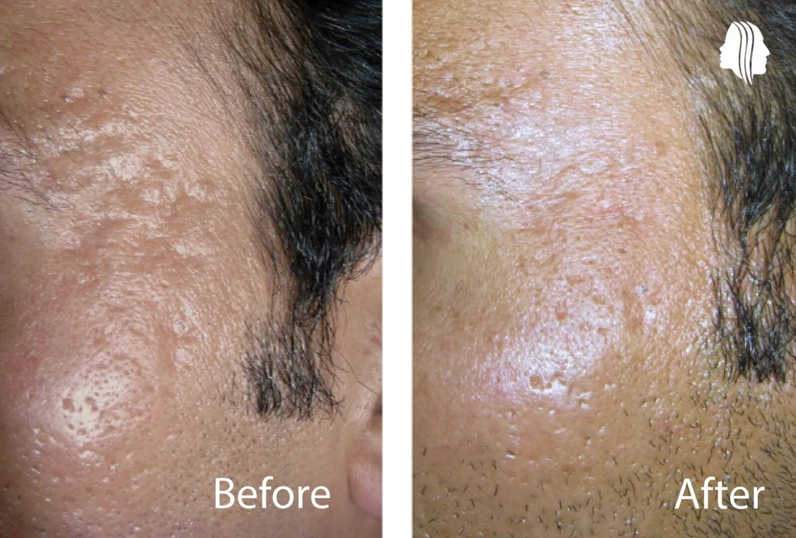 z Acne treatment in Delhicne1PrePost