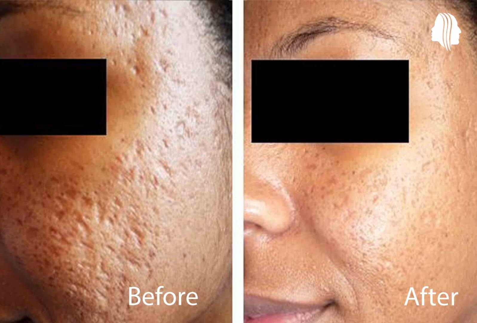 z25 PreP1ost in acne scar treatment