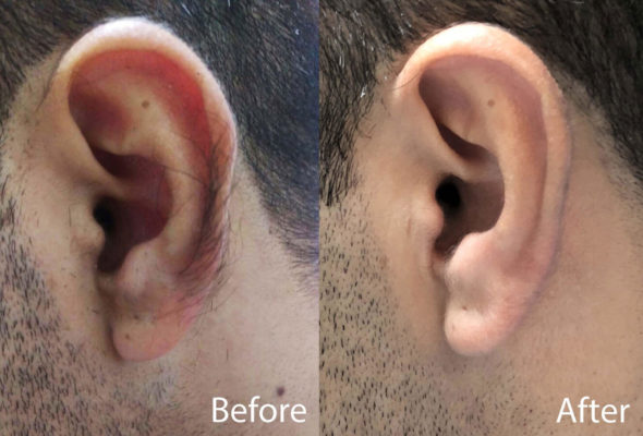Ear Hair removal in Delhi
