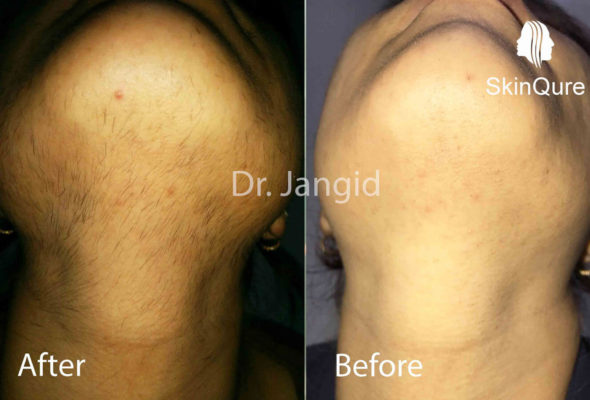 Skinqure neck hair remove
