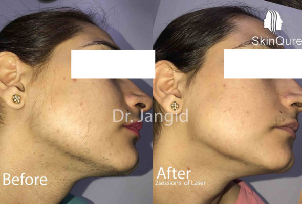 Skinqure cheek hair remove