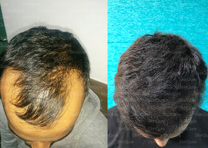 Hair loss Problems? Need Solutions!