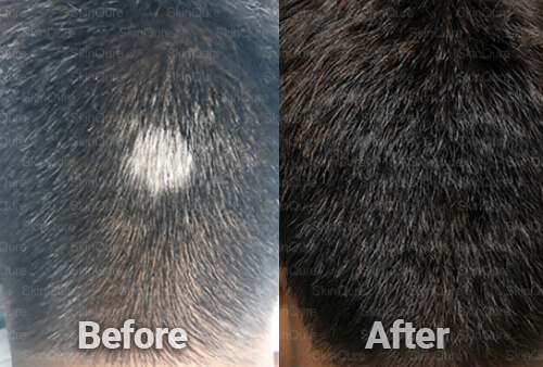 hair Treatment before and after Sonu Alopecia