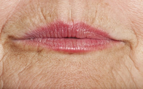 Ageing of Lips