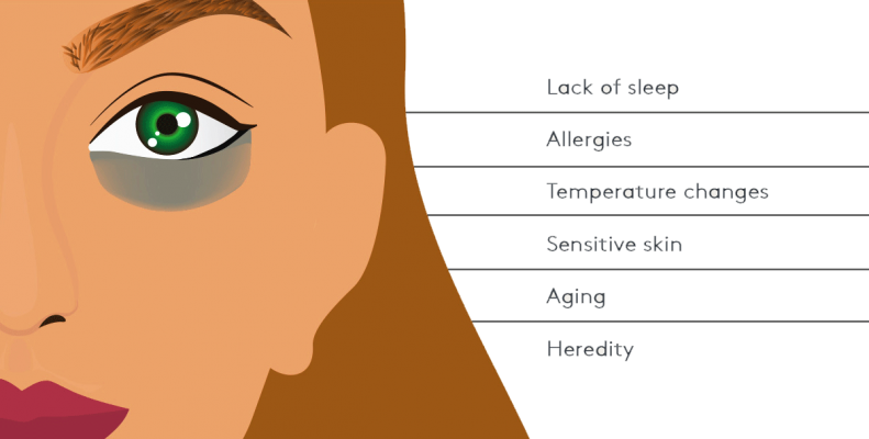 Causes-of-undereye-dark-circles