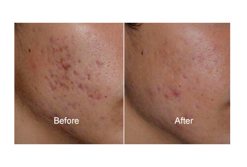 Acne Scar surgeries before and after