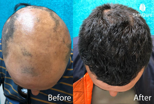 Alopecia Areata before and after