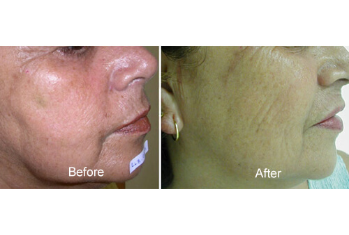 BTX -A Treatmen before and after