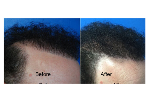 Body Hair Transplant before and after
