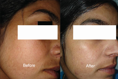 Chemical Peels Organic Peels before and after