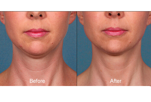 Double Chin Treatment before and after