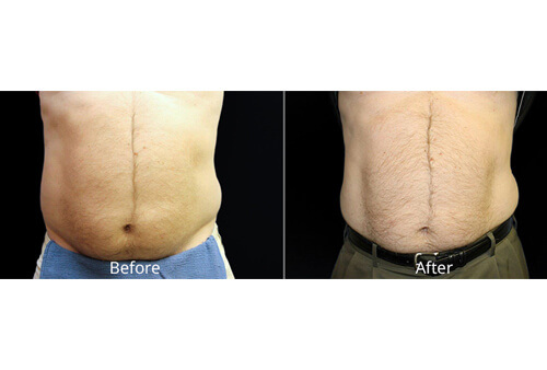 Fat Reduction before and after