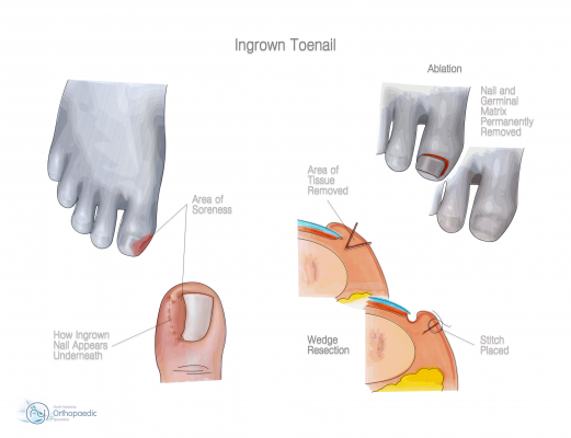 Ingrown_Toenail