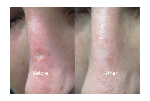Laser for Chicken Pox Scar before and after