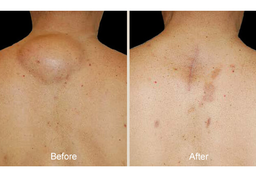 Lipoma Treatment before and after
