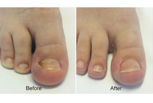 Nail Surgery before and after
