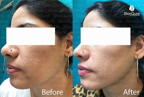 Open Pore Treatments before and after