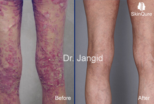 Psoriasis Treatment before and after (1)