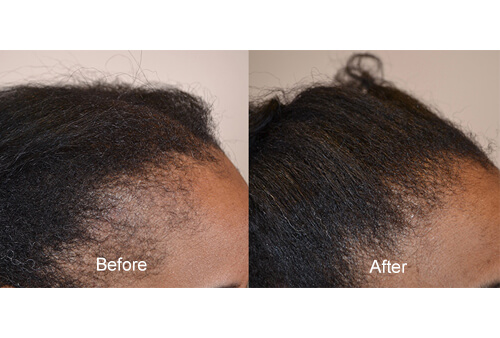 Scarring Alopecia before and after