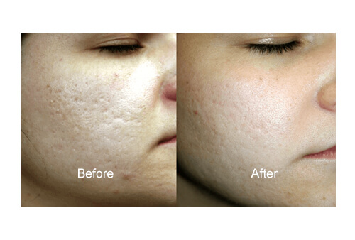 Skin Glow Treatment before and after