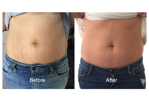 Stretch Mark Treatments before and after