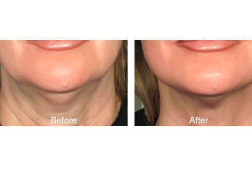 UltraCel Treatment before and after