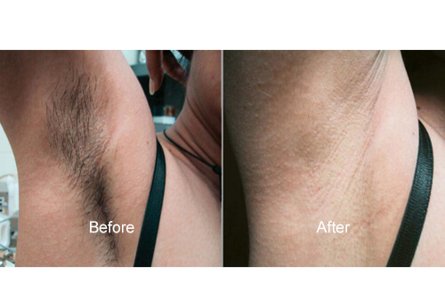 Underarm Treatments before and after