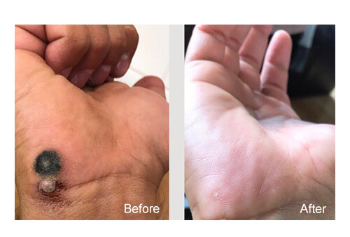 Wart Removal befer and after
