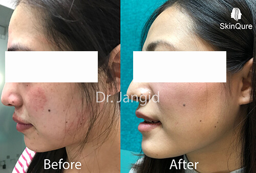 Tinea before and after