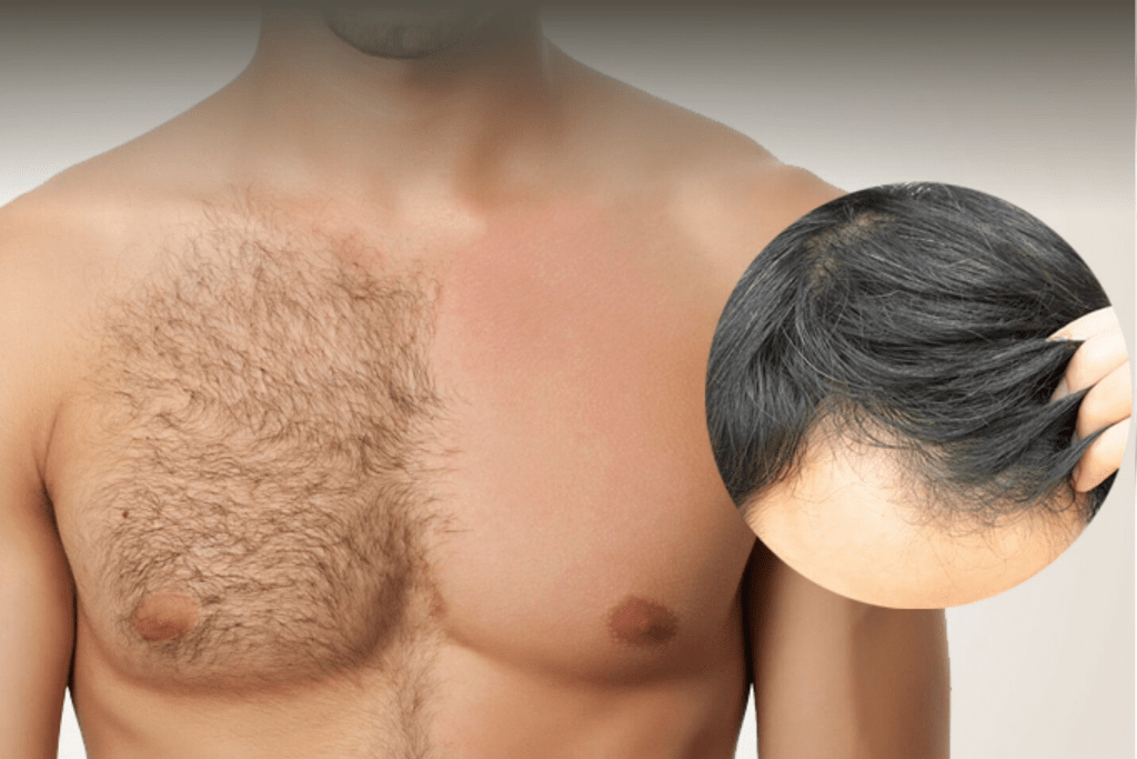Everything You Need To Know About Body Hair Transplant